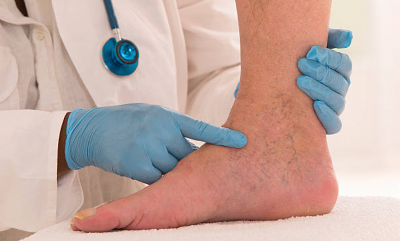 Photo of Best and Safe Remedies to Get Rid of Spider Veins
